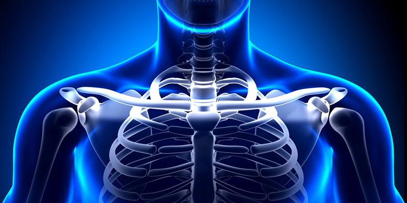 Cirurgia da Clavícula
