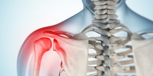 Cirurgia Artroscópica do Ombro